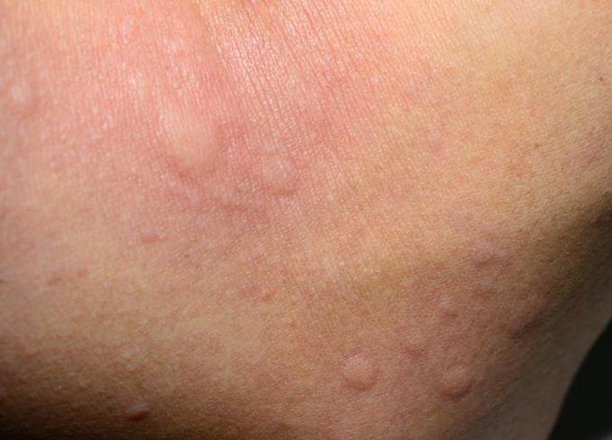 Аллергия на йод как проявляется