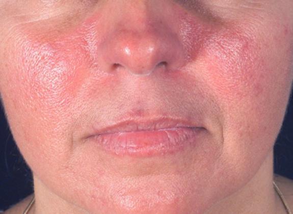Фотодерматит на лице