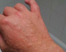 Аллергия в ноябре