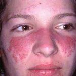 Аллергия на крем для лица: причины, симптомы и что делать