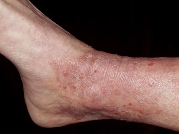 Диффузный нейродермит на ноге