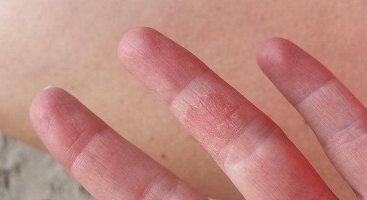 Аллергия на руке