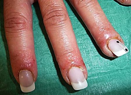 Проявление аллергии на гель-лак