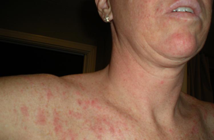 аллергия на хлеб при грудном вскармливании