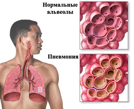 Вид пневмонии