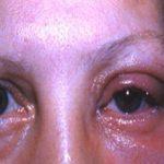 Аллергический блефарит — симптомы, причины и как лечить