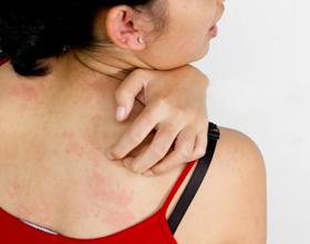 Аллергия на теле признаки