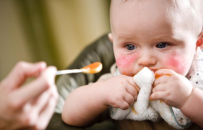 Аллергия у малыша
