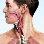 Аллергический ларинготрахеит: причины, симптомы и лечение
