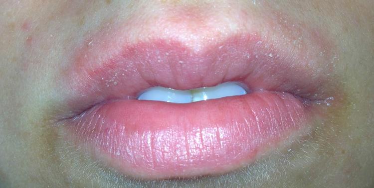 фото аллергия на левомицетин