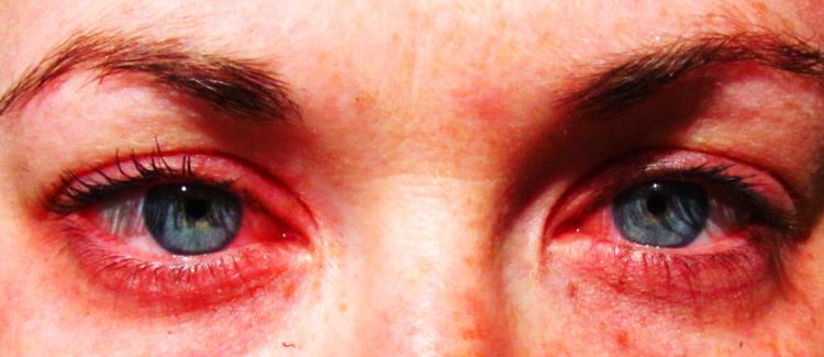 Как сделать белки глаз красные 572