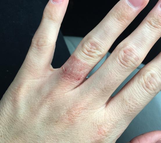 Аллергия на кольцо