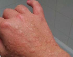 Аллергия на холод (на руках, лице, ногах): симптомы и лечение
