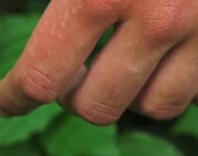 Аллергия на нервной почве: может ли быть, симптомы и лечение (с фото)