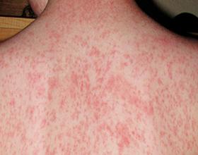 Аллергия на парацетамол: симптомы и чем заменить