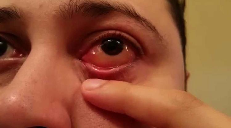 Проявление аллергии на глазах