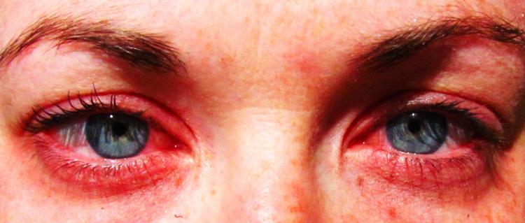 Красные глаза