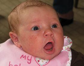 Аллергия у грудничка на лице: причины, как выглядит и чем лечить