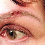 Аллергическая реакция на краску и татуаж для бровей: симптомы и что делать