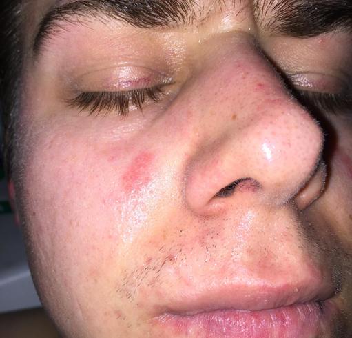 Пятно на лице у мужчины
