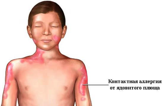 Аллергия от плюща