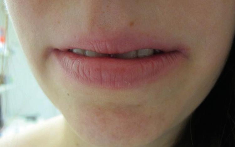 Проявление на губах