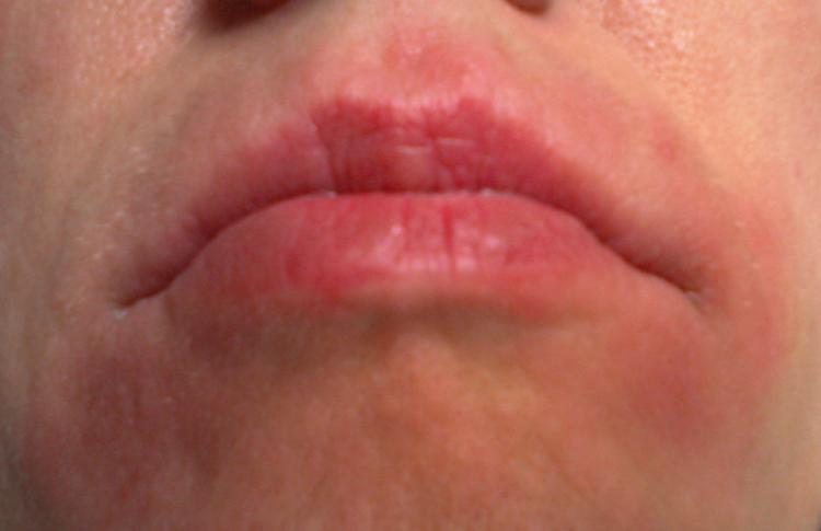 Набухания в области рта