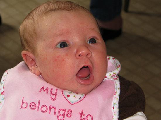 У малыша аллергия на лице