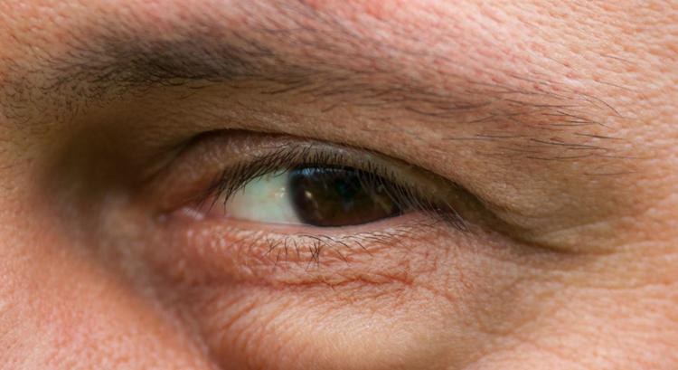 У мужчины опух глаз