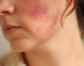 Аллергия и красные пятна на лице: причины, профилактика и что делать (с фото)
