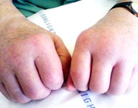 Отек рук при аллергии: причины и что делать