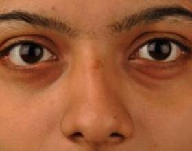 Если при аллергии отек глаз: причины и что делать