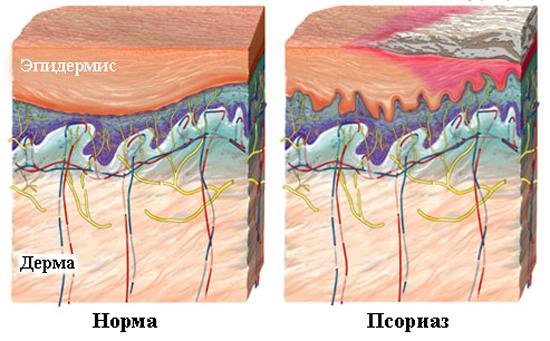 Вид псориаза
