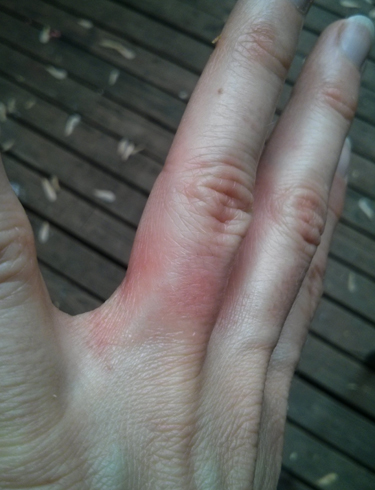 Аллергия на месте кольца