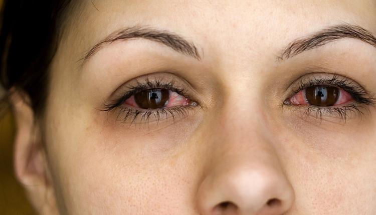 Аллергический риноконъюнктивит у девушки