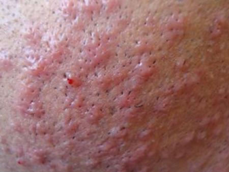 Реакция после бритья