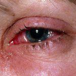 Аллергический конъюнктивит у взрослых и детей: симптомы и лечение