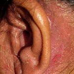 Ушной дерматит: причины появления, симптомы, диагностика и лечение