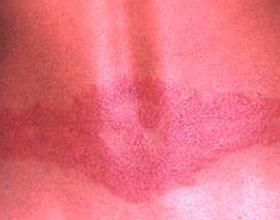 Аллергия на спине у взрослых и детей: симптомы и лечение