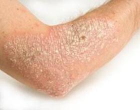Аллергическая экзема — причины возникновения, симптомы и лечение