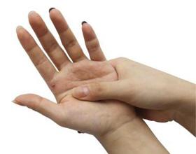 Аллергия на кистях рук: причины, симптомы и что делать