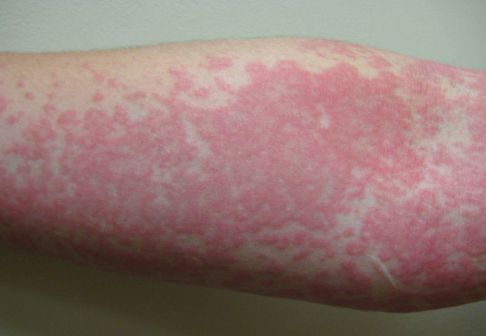 Сильная аллергия на руке
