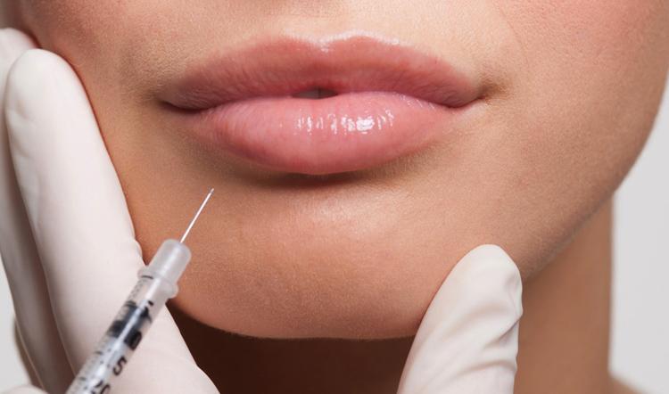 Инъекция гиалуроновой кислоты