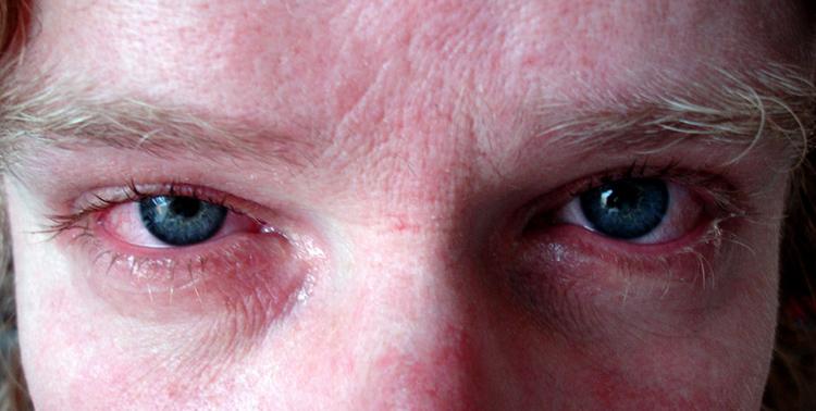Аллергический риноконъюнктивит