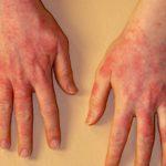 Аллергия на латекс у женщин и мужчин: симптомы и что делать