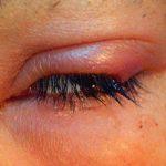 Отек век при аллергии: причины и как его снять