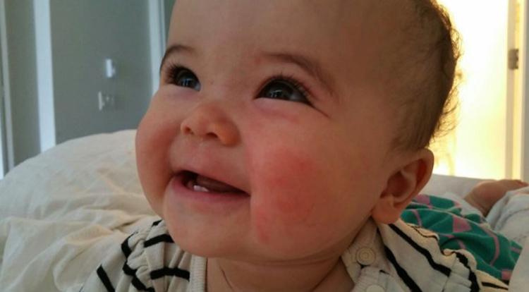 Покраснение кожи у малыша