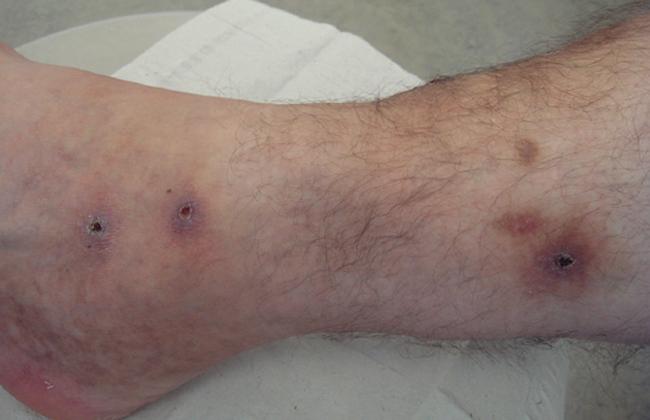 Нога после пиявок
