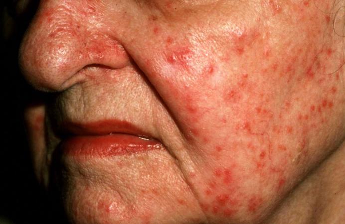 Проявление стероидного дерматита
