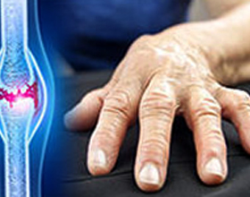 Инфекционно-аллергический полиартрит: что это, причины, симптомы и лечение